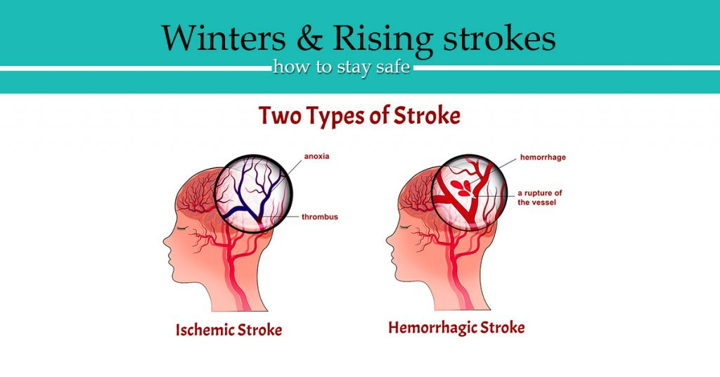 brain stroke types
